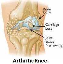 Arthritis in the lateral part of the knee (the outer side) causes outer knee pain