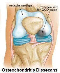 Osteochondritis Dissecans most commonly affects the knee