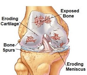 Arthritis is a common cause of posterior knee pain. Image source OrthoInfo AAOS http://bit.ly/2zVbjRN