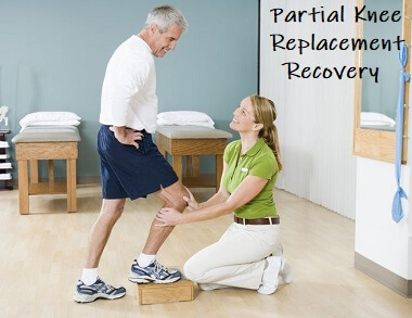 Partial Knee Replacement Recovery - what to expect and how to get the best results from your new knee
