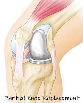 Partial knee replacements are becoming increasingly popular for unilateral knee arthritis.