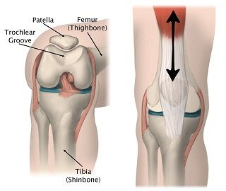 15060398c4 The kneecap aka patella sits at the front of the knee joint and glides up  and