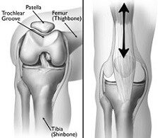 Runners Knee aka Anterior Knee Pain is the most common cause of front knee pain