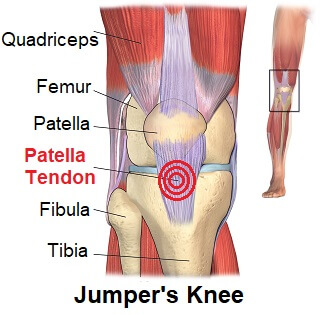 Patellar tendonitis jumpers knee symptoms diagnosis treatment jumpers knee aka patellar tendonitis causes pain just below the kneecap ccuart Images