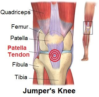 Jumper's Knee, aka Patellar tendonitis, causes pain just below the kneecap