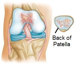 With kneecap arthritis there is wear and tear of the cartilage on the back of the patella and in the patella groove on the thigh bone