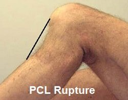 You can see here the tibia (shin bone) has glided back too far due to a PCL injury