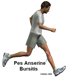 Find out about the common causes, symptoms, diagnosis and treatment of pes anserine bursitis
