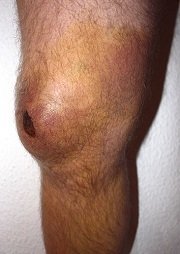 A common site of knee bursitis is the front of the knee, known as Prepatellar bursitis.