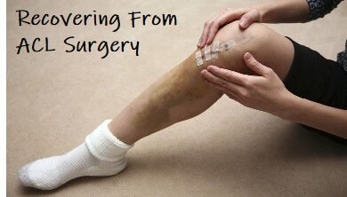 Common problems after ACL surgery. Find out what to expect