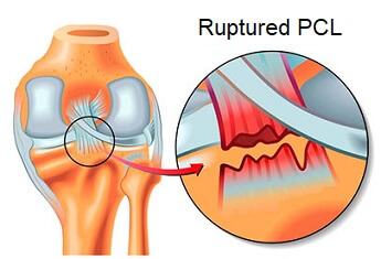 The posterior cruciate ligament (PCL) gets damaged when it is overstretched and can rupture if there is enough force