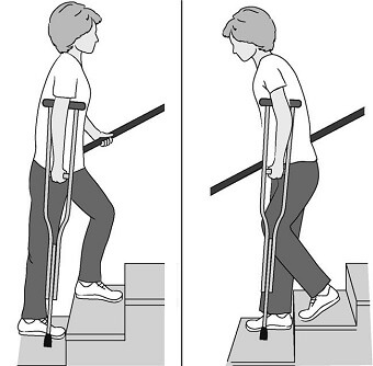 The correct way to go up and down stairs with crutches. In these pictures, the affected leg is the right leg. Going Up - Good leg, bad leg, crutch. Coming down - crutch, bad leg, good leg.