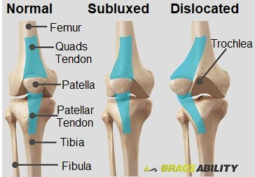The difference between a subluxed and dislocated patella