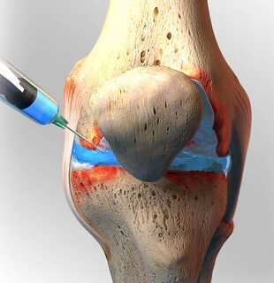 Synvisc knee injections are joint lubricants that help to reduce knee pain and stiffness. Find out how they work and the risks and benefits