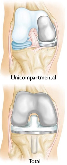 Unicompartmental knee replacement compared with total knee replacement
