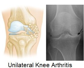 (Left) Osteoarthritis that is limited to the medial compartment. (Right) This x-ray shows severe osteoarthritis with